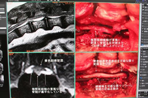開胸手術症例2