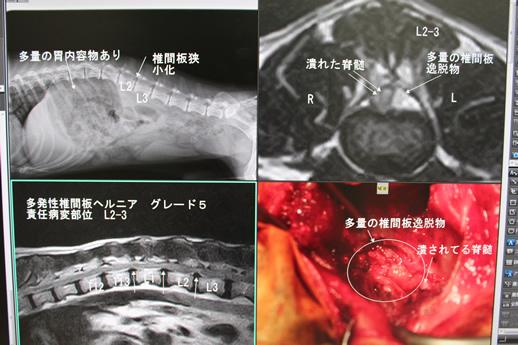 開胸手術症例4