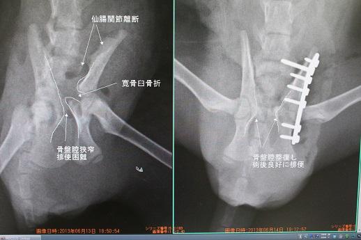 整形外科症例