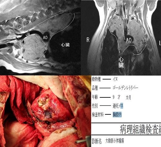 開胸手術症例