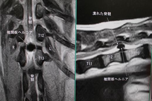 開胸手術症例5