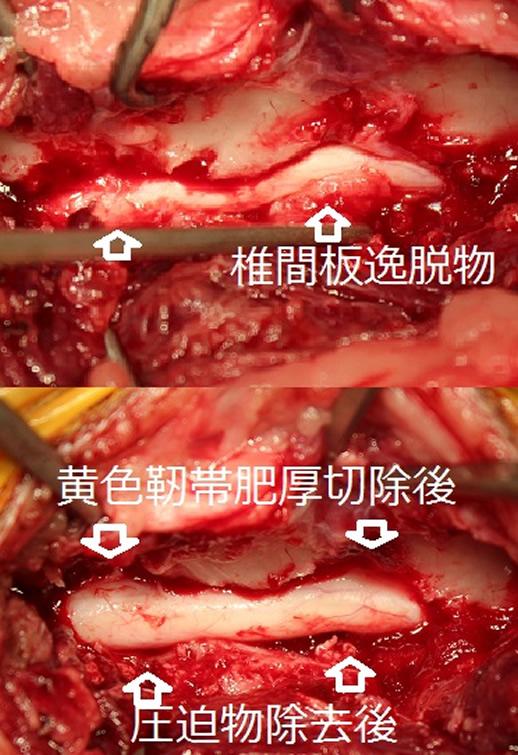開胸手術症例3