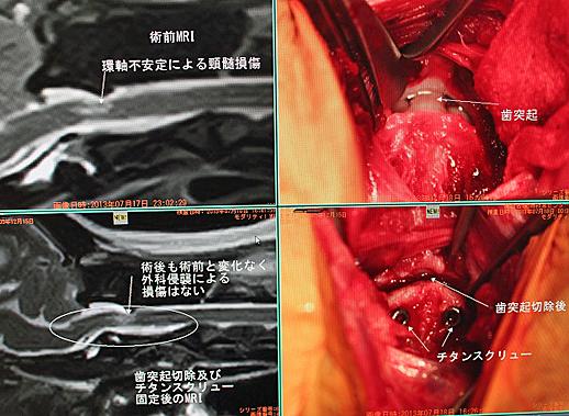 環椎軸椎不安定・亜脱臼症例