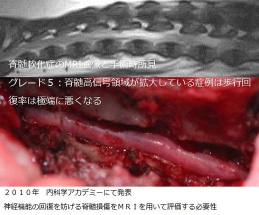 椎間板ヘルニア症例