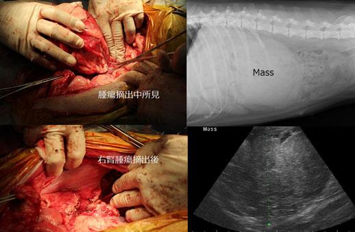 腹部緊急手術症例